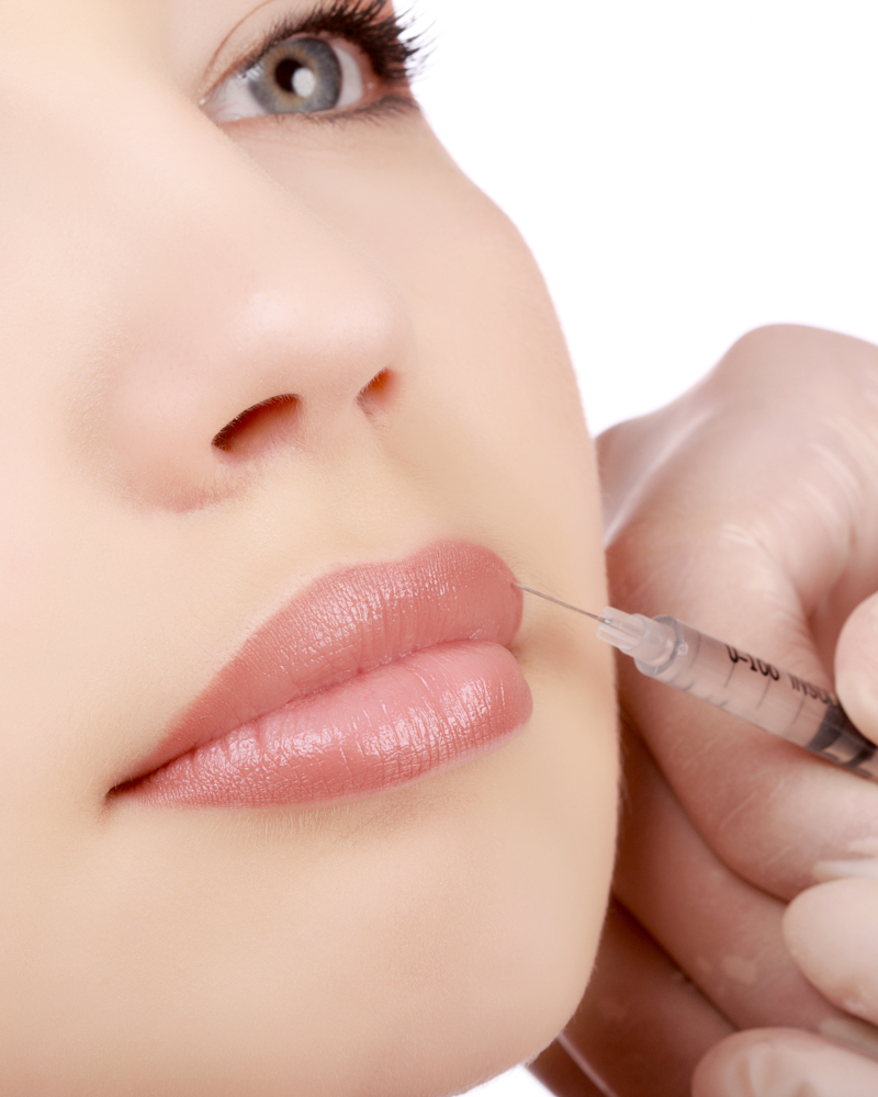 RevivaMed-Lip-Injections