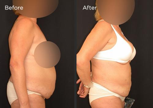 10-Liposculpture-Plastic-Surgery