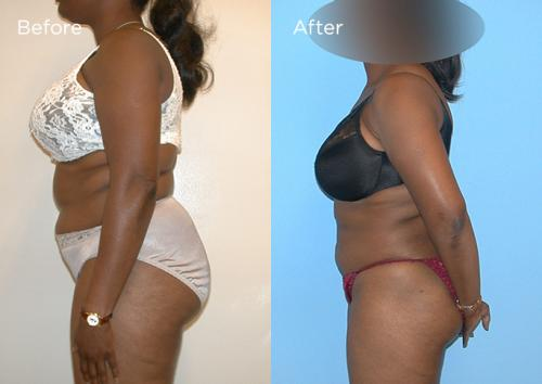 2-Liposculpture-Plastic-Surgery