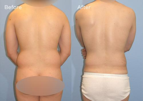5-Liposculpture-Plastic-Surgery