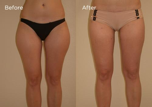 6-Liposculpture-Plastic-Surgery