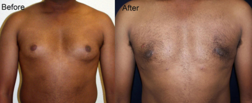 Male-Breast-Reduction-Dr-Kian-Samimi-700W